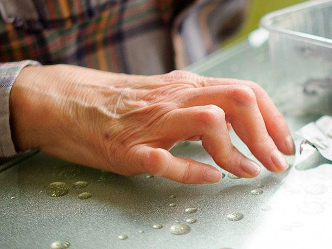 Bilder von rheumatoiden Arthritis-Symptomen