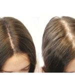 Biotin für Haarwuchs: Nebenwirkungen, Dosierung und mehr
