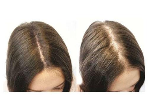 Biotin für Haarwuchs Nebenwirkungen, Dosierung und mehr