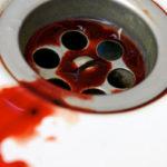 Blut beim Abwischen: Ursachen, Vorbeugungstipps und mehr