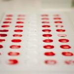 Blutgruppenbestimmung: Zweck, Verfahren und Risiken