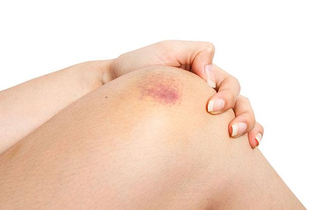 Blutungen in die Haut Ursachen, Diagnose und Behandlungen
