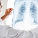 COPD und Lungenentzündung: Verständnis für Ihr Risiko
