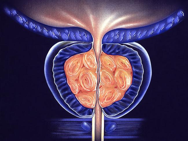 Chronische bakterielle Prostatitis Ursachen, Symptome Diagnose