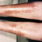 Diabetische Dermopathie: Ursachen, Symptome, Behandlungen und Bilder