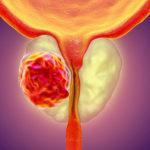 Die Top 7 Zeichen von fortgeschrittenem Prostatakrebs