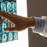 Diffuse axonale Verletzung: Prognose, Symptome und Behandlung