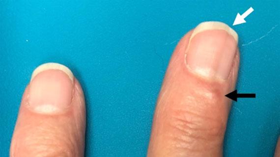 Digitale Myxoidzyste Ursachen, Symptome, Bilder und Behandlung