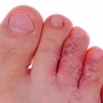 Fußblasen des Athleten: Behandlung, Prävention, Bilder