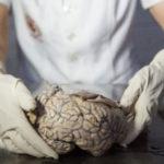 Gehirnstörungen: Ursachen, Symptome und Diagnose