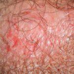 Genitale Psoriasis: Symptome, Behandlung und mehr