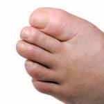 Geschwollene Zehe: Symptome, Ursachen und Behandlungsmöglichkeiten