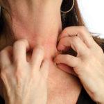 Hast du einen Ausschlag vom Heuschnupfen? Symptome und Behandlungen