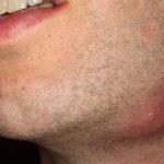 Hautabszesse: Ursachen, Diagnose und Behandlung
