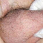 Hodenatrophie: Symptome, Ursachen und Behandlung