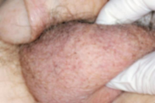 Hodenatrophie Symptome, Ursachen und Behandlung