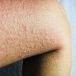 Kälteunverträglichkeit: Ursachen, Diagnose und Behandlungen