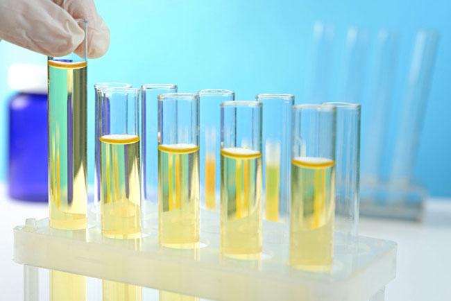 Kalziumoxalatkristalle im Urin Symptome, Ursachen, Behandlung