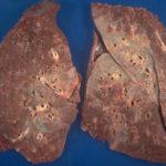 Lungengranulom: Behandlung, Symptome, Krebs und mehr