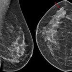 Mammographie-Bilder: Ihre Ergebnisse verstehen