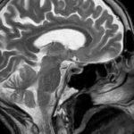 Multiple Sklerose MRI Bilder des Gehirns