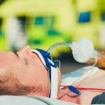 Nasogastrische Intubation und Fütterung | Definition, Anwendung