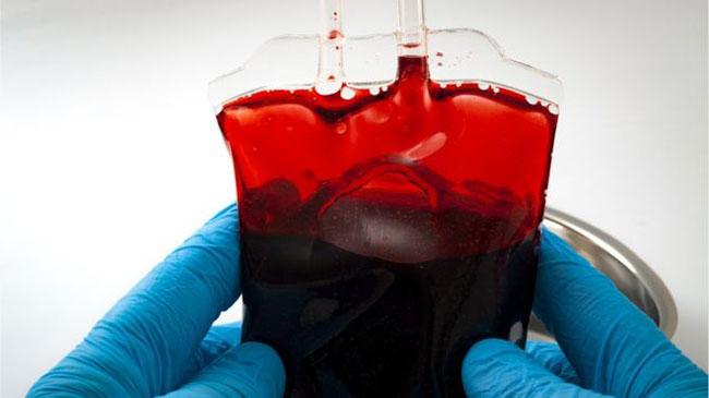 Normaler pH-Wert des Blutes beim Menschen Was kann es beeinflussen