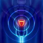 Prostata-Infektion: Ursachen, Symptome und Abhilfemaßnahmen