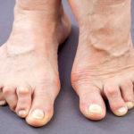 Rheumatoide Arthritis: Was CRP Levels über Sie sagen