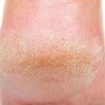 Rissige Fersen und trockene Haut an den Füßen: Behandlungen und mehr