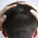 Schmerzen im Hinterkopf: Ursachen, Behandlung und mehr
