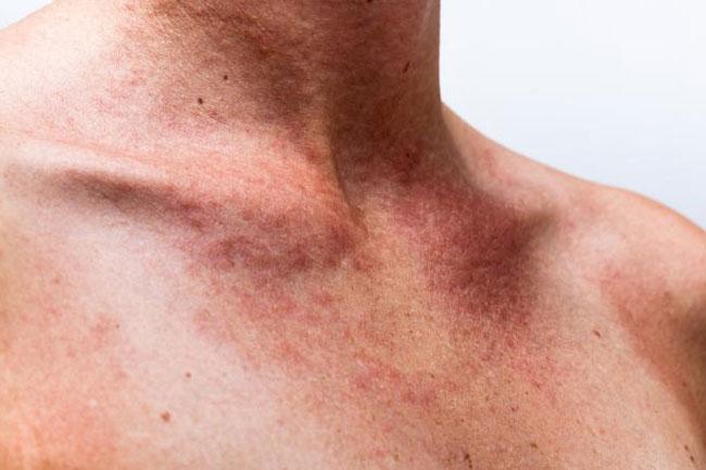 Sonnenbrand Vergiftung, Allergie, Behandlung, Ursachen, Bild