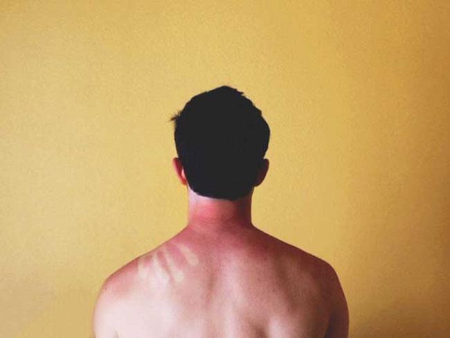 Sonnenbrand oder Juckreiz in der Hölle Behandlung, Prävention und mehr