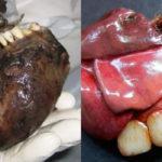 Teratom: Definition, Symptome, Ursachen, Krebs, Behandlung