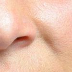 Umgedrehte Nase: Müssen Sie sie korrigieren?