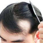 Vitamin D-Mangel und Haarausfall: Was ist die Verbindung?
