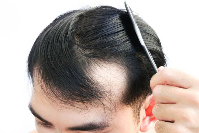 Vitamin D-Mangel und Haarausfall Was ist die Verbindung