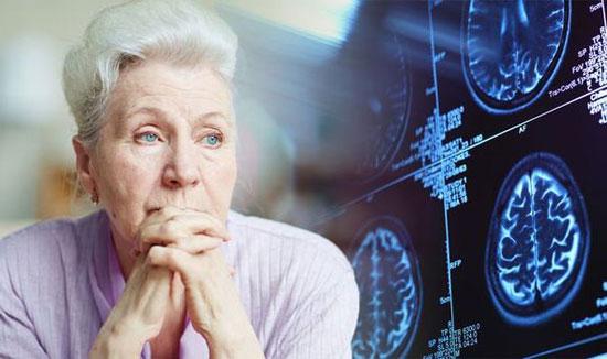 Was ist eine vaskuläre Demenz