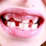 Weiße Flecken auf den Zähnen: Bei Kindern, bei Krankheit und mehr