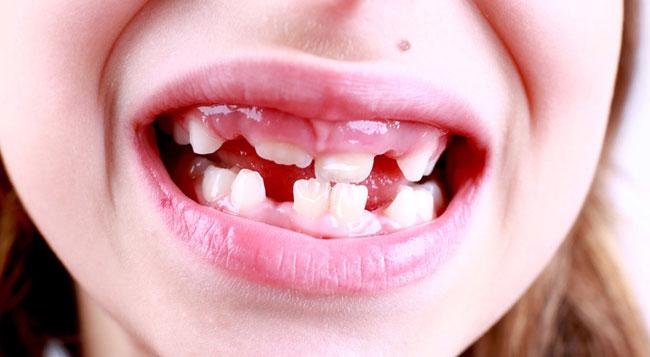 Weiße Flecken auf den Zähnen Bei Kindern, bei Krankheit und mehr