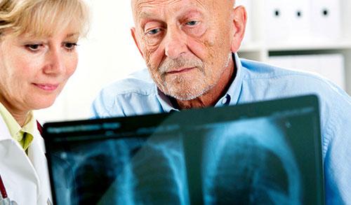 Wie Ärzte Menschen mit COPD behandeln, die eine Lungenentzündung haben