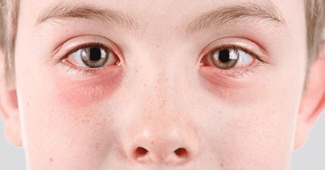 Wie lange hält das rosa Auge Viral Vs. bakterielles rosa Auge