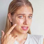 Wie man eine Cyst: Auf dem Gesicht, Rücken, zu Hause und mehr