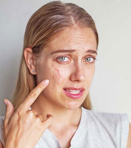 Wie man eine Cyst Auf dem Gesicht, Rücken, zu Hause und mehr