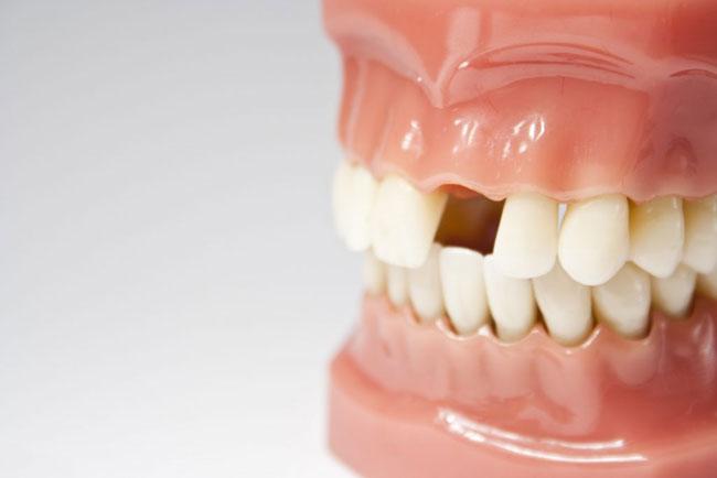 Wie viele Zähne haben Erwachsene Oben, unten und Babys