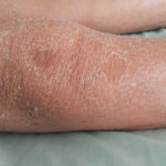 Xerosis Cutis: Ursachen, Symptome und Behandlungen