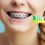 Zahnkrallenfarbe: Welche Farben gibt es und wie kann ich wählen?