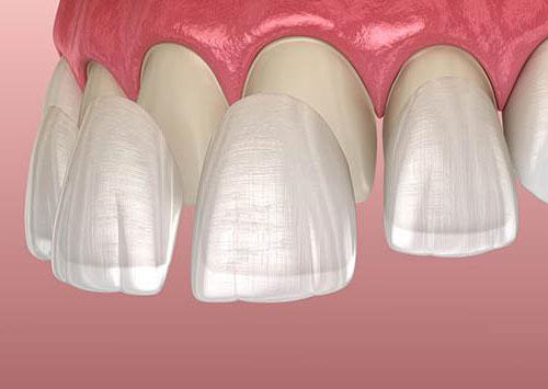 Zahnveneers Kosten, Verfahren vs. Krone, Implantate und mehr