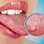 Zungenbrand: Ursachen, Risikofaktoren und Symptome
