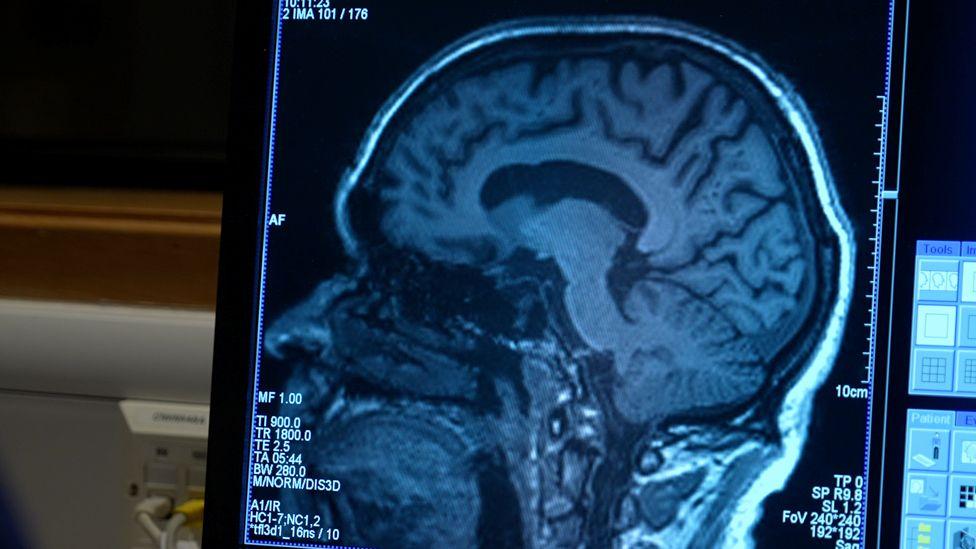 Aldos Gehirn wurde regelmäßig gescannt, um die Auswirkungen von Aducanumab zu erkennen
